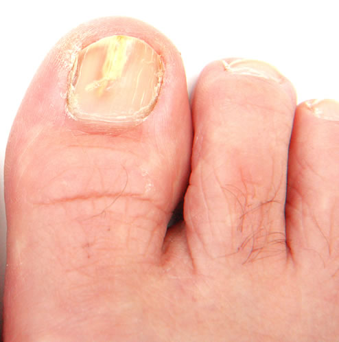 Top 5 Tips to Prevent Fungal Foot and Nail Infections