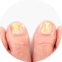Fungal Nail Treatments