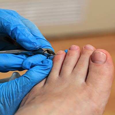 How To Cut Your Toenails?